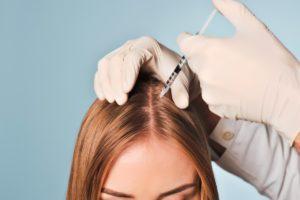 Мезотерапия кожи головы - процедура, результат
